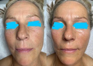 ✨✨Just one treatment!✨✨Her skin had been under a lot of stress over the past several months and it honestly just took ONE RevitaPen Infusion + Microcurrent treatment to get her skin happy again! Now that she's back on track, her skin will only continue to get better & better. It's never too late!⏳ #nanotechnology #microcurrentfacial #microcurrent #holisticskincare #naturalskincare #agewithgrace #osmosisskincare #osmosisbeauty #resultsbyabbieskinlove
