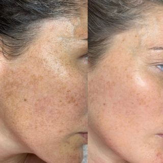 Melasma, hyperpigmentation, & liver spots can be challenging to heal since the root cause is liver damage (at least in the case of melasma & liver spots) & you must heal the liver in order to achieve permanent results. I'm really happy with the results that we are seeing so far. It has only been two months and I already see a difference! My client is on a home care plan designed specifically to address her pigmentation & then I see her monthly for facial treatments. Stay tuned because I predict very dramatic overall results!  #pigmentation #melasma #evenskintone #holistichealing #holisticskincare #naturalbeauty #nontoxicbeauty #resultsbyabbieskinlove