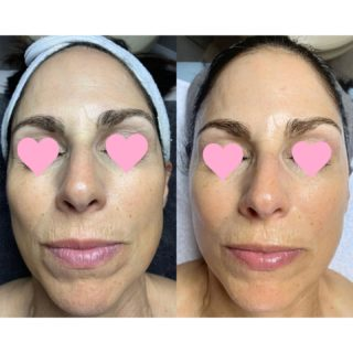 I love love love how effective my holistic skin treatments create such beautiful changes in the skin.   My client receives monthly Microcurrent treatments & uses a customized home care skin routine that I created for her.   Her results so far are amazing!👏🏻👏🏻 I see more volume, softening of fine lines, & an overall more youthful appearance!  #microcurrent #osmosisskincare #holisticskincare #naturalbeauty #toxicfreeskincare #resultsbyabbieskinlove