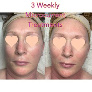 TAMA Microcurrent is completely natural, holistic, non-invasive, and allows your facial muscles to tone, rejuvenate, heal and rebuild themselves.   Used as an anti-aging tool, it can diminish the appearance of fine lines and wrinkles by toning and rejuvenating the facial muscles. This process stimulates the production of collagen and elastin.   The effects are immediate and cumulative. This UPLIFTING therapy is preventative, as well as corrective.  My client is doing a weekly series of 6 in order to train her muscles & create muscle memory. She'll then receive treatments monthly in order to maintain her results. I'm so excited for her!!!!👏🏻👏🏻💃🏻💃🏻 #microcurrent #microcurrentfacial #tamamicrocurrent #antiaging #holistic #naturalskincare #skintransformation #resultsbyabbieskinlove