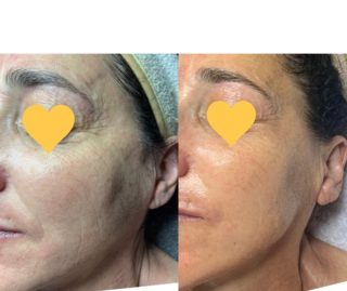 I love how my clients look younger & younger the longer that they're with me, although in real time they are older in years⏳  Holistic skin care is highly effective skin care because the results are healthy & REAL🙌🏻 #holisticskincare #naturalskincare #nontoxicbeauty #microcurrent #beforeandafterskin #antiaging #resultsbyabbieskinlove