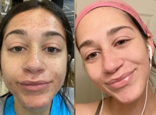 """I know. How adorable is she?😍 And even with all her spunk & loveliness, acne is no joke.   Here's the thing with acne. In order to heal your acne for good, you must be """"all in!"""" Healing acne requires not only professional treatments and very specific home care, it must also include diet changes as well as looking at your environment, makeup, daily habits, supplements, medications, inflammation in the body, digestive/gut issues, as well as issues with other organs, and so much more! No easy task.   We know the root cause of acne is toxins, but in order to determine the toxic sources you're being exposed to, it takes some serious detective work. Candida, estrogenic, preservatives, pesticides, chlorine, plasticides, mucus build up, medications, food allergies, etc., etc., etc. Even """"hormonal acne"""" is due to a much deeper root cause.  This beautiful client of mine went """"all in"""" & trusted the process every step of the way. She remained patient, optimistic, & did her part! Together, as a team, we figured out the root causes and resolved them!   Knowing the source of the acne means we can make some serious progress. It's very different for everyone, which is why working with a holistic Esthetician who understands both internal & environmental factors can make a world of difference. #acne #acnetreatment #holistichealing #holisticskincare #clearskin #healthyfromtheinsideout #osmosisskincare #osmosisbeauty #resultsbyabbieskinlove"""